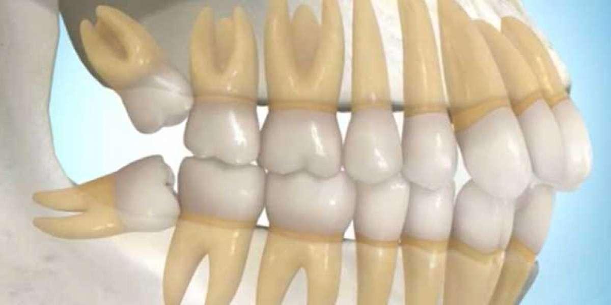 Latest Impacted Wisdom Teeth Pain Treatment Pc Cracked Download 32bit Full Zip