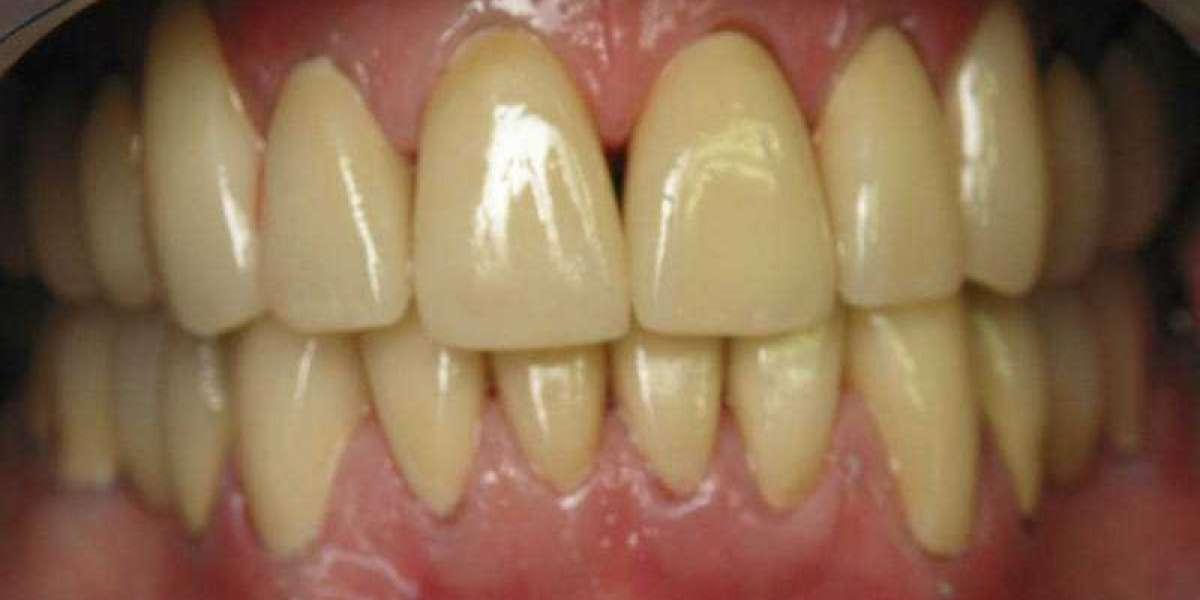 License Liver Disease Yellow Teeth 64 Keygen Ultimate Iso