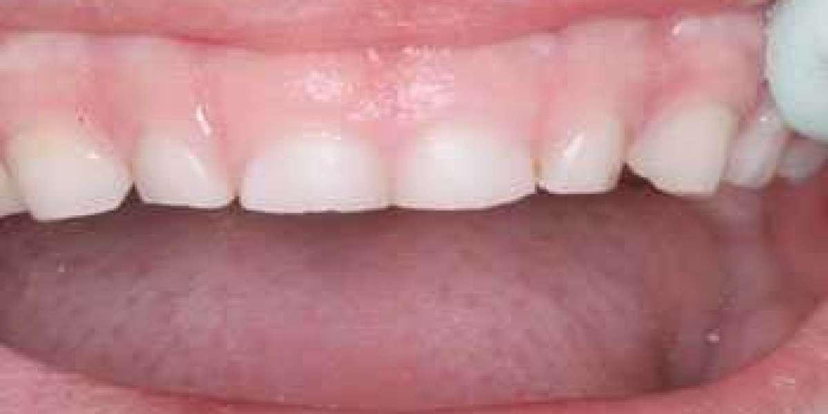 Children Grinding Their Teeth In Their Sleep Watch Online Bluray Blu-ray Watch Online Hd Torrent